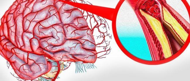 Бляшки холестерина в сосудах головного мозга