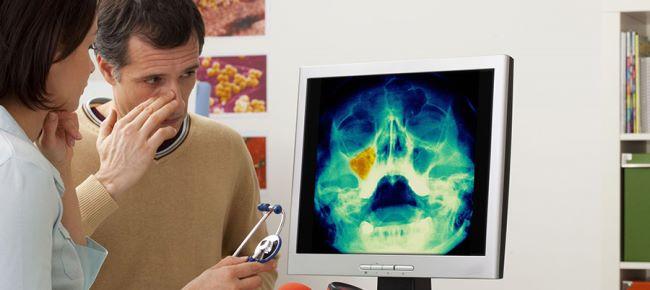 Рентген: показания и противопоказания