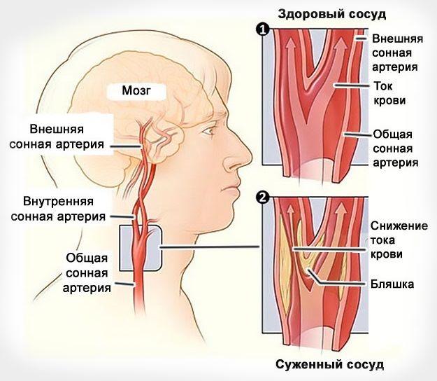 Причины стеноза