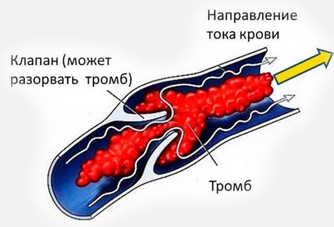Холестеринные бляшки