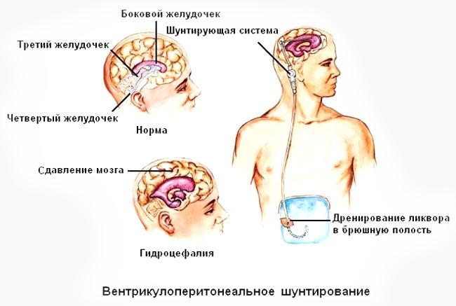 Шунтирование ликвора