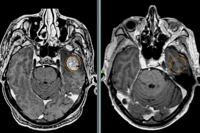 Патологические очаги при поражении мозга